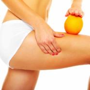 Celulitis: a pesar de ser común, muchas mujeres aún la viven con vergüenza
